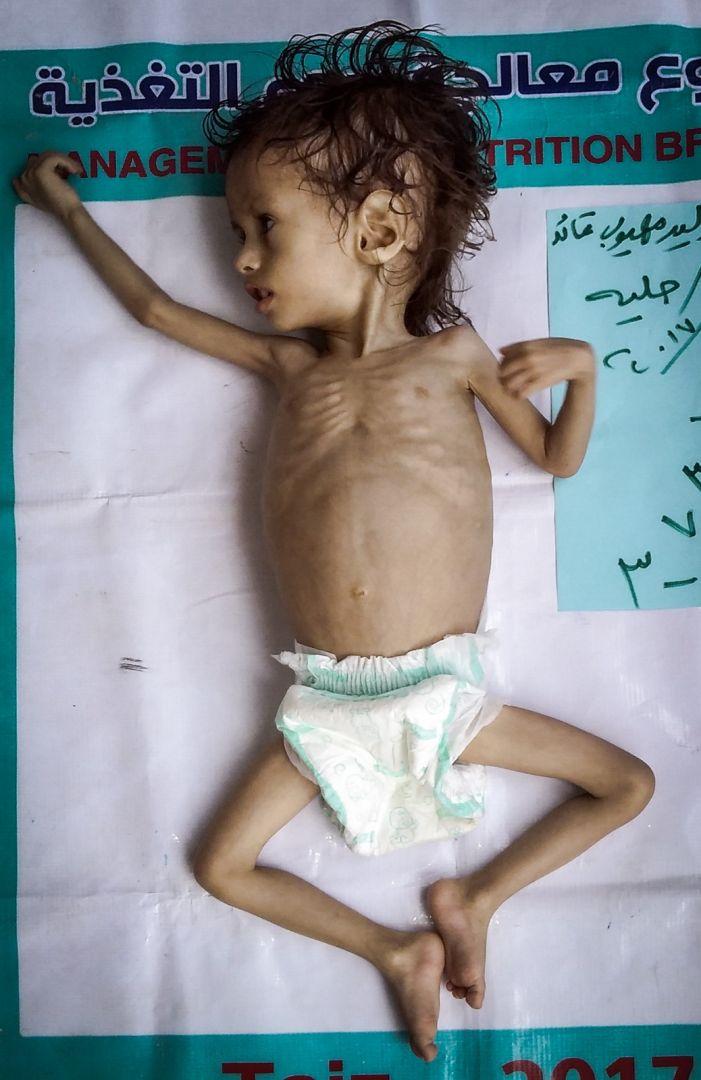 Yemen'e WEFA Eli